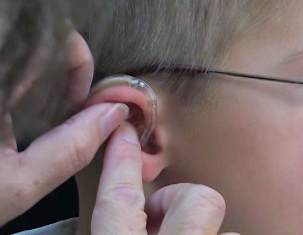 How to Insert and Remove the Earmold